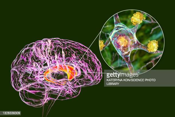 neuronal inclusions in huntington's disease, illustration - neuropathy stock illustrations