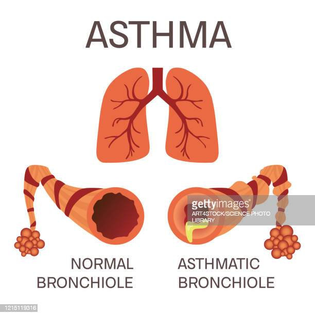 normal and asthmatic bronchioles, illustration - asthmatic stock illustrations