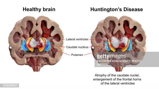 normal brain and brain in huntington's disease, illustration - neuropathy stock illustrations
