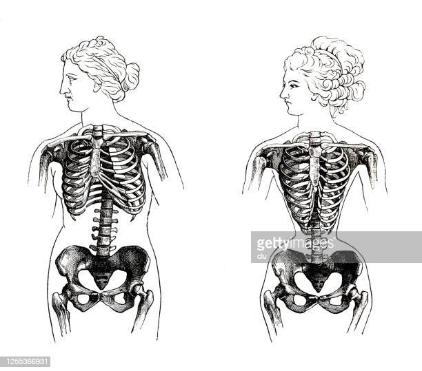 normal female rib cage compared to rippled due to excessive lacing - en búsqueda stock illustrations