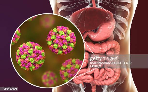 norovirus infection, illustration - small intestine stock illustrations
