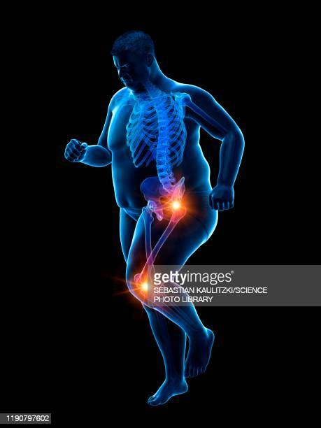 obese runner with joint pain, illustration - artistic product stock illustrations