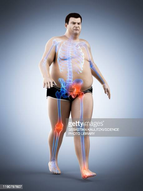 obese runner with joint pain, illustration - rheumatism stock illustrations