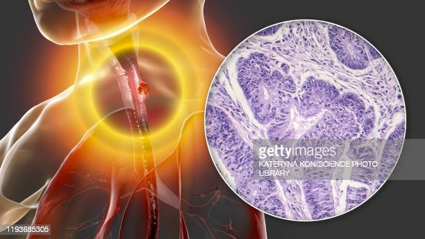 oesophageal cancer, illustration and micrograph - human digestive system stock illustrations