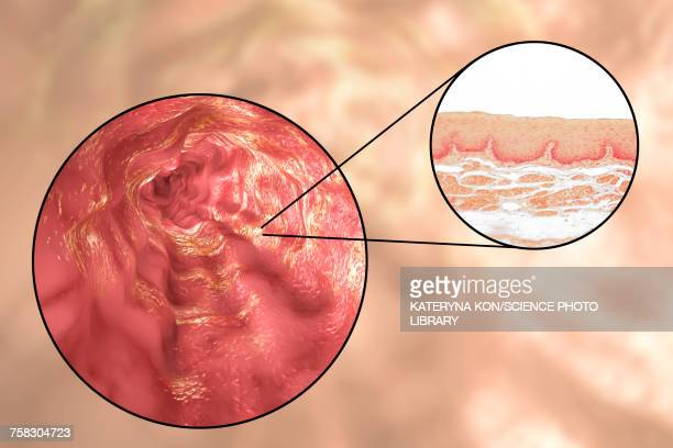 oesophagus wall, light micrograph and illustration - tissue anatomy stock illustrations, clip art, cartoons, & icons