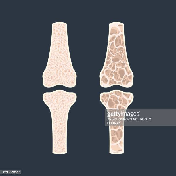 osteoporosis, conceptual illustration - the ageing process stock illustrations
