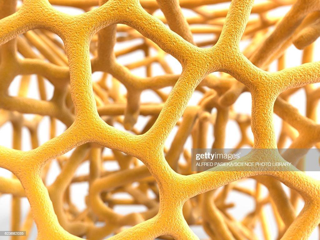 Osteoporotic bone, artwork : stock illustration