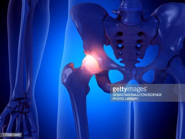 painful hip joint, illustration - rheumatism stock illustrations