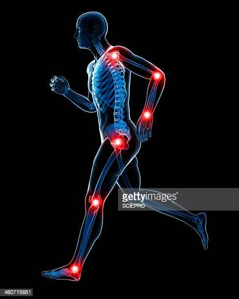 illustrations, cliparts, dessins animés et icônes de painful joints, artwork - partie du corps humain
