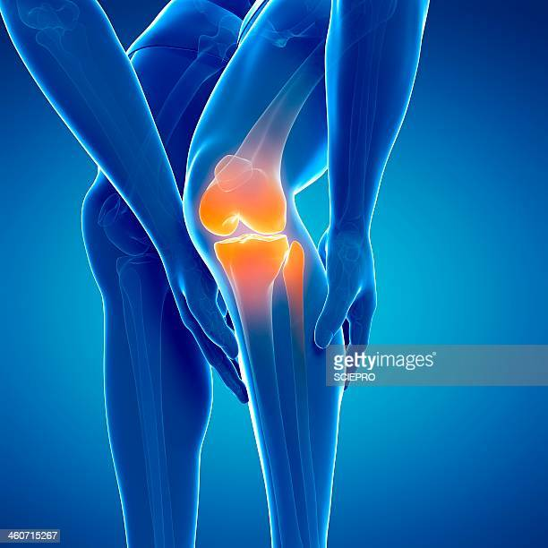 painful knee, artwork - translucent stock illustrations