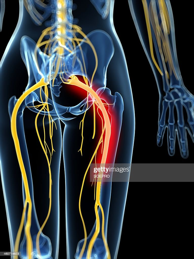 Painful Sciatic Nerve Artwork Stock Illustration Getty Images