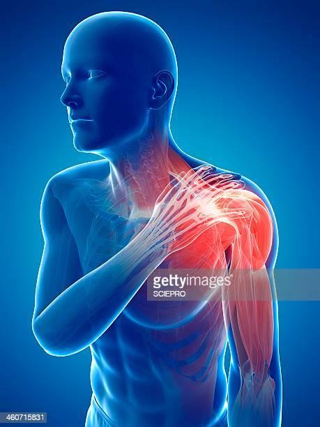 painful shoulder, artwork - inflammation stock illustrations