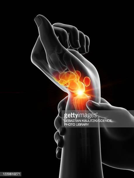 painful wrist, illustration - arthritis stock illustrations