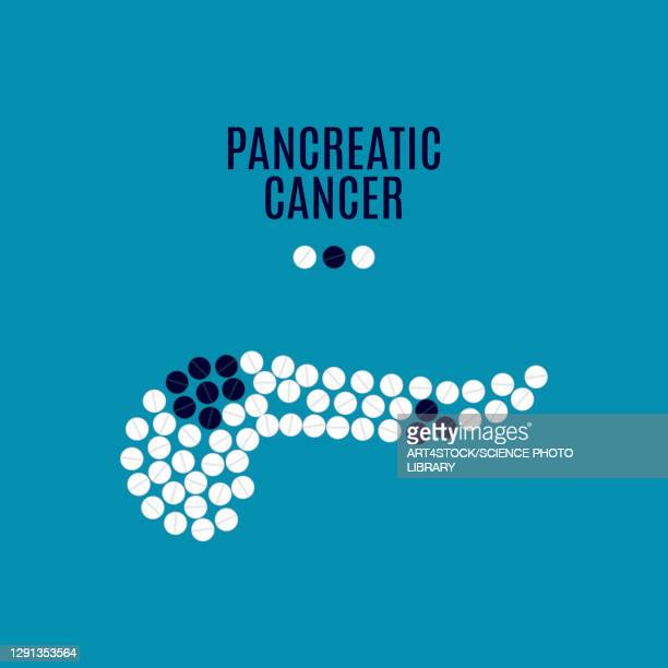 pancreatic cancer, conceptual illustration - cyst stock illustrations