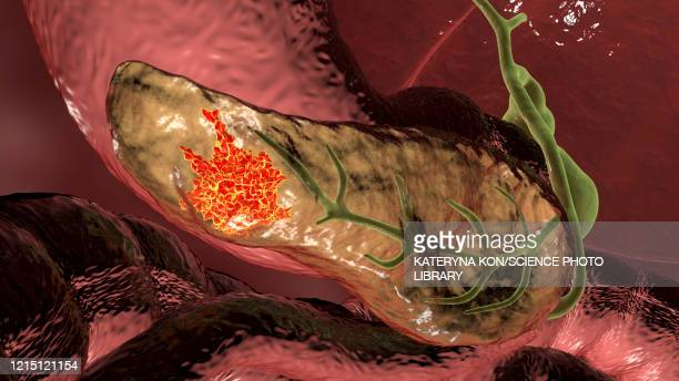 pancreatic cancer, illustration - digestive system stock illustrations