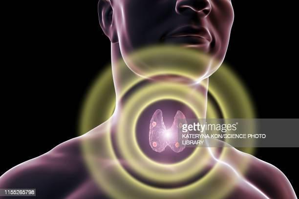 parathyroid glands, illustration - male likeness stock illustrations