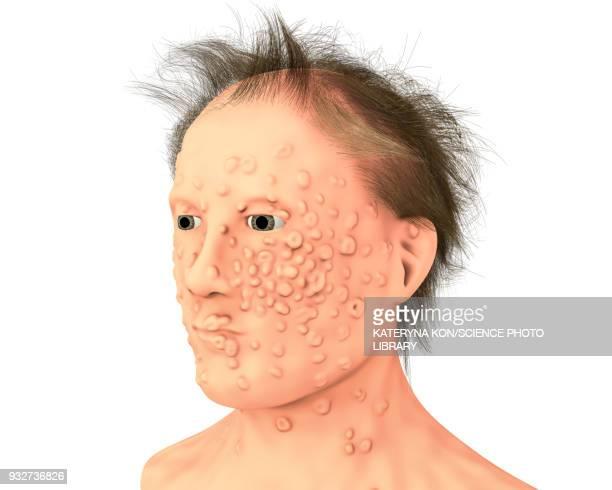 Patient with smallpox, illustration