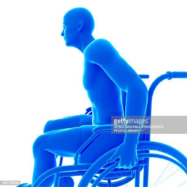 person in wheelchair, illustration - paralysis stock illustrations, clip art, cartoons, & icons