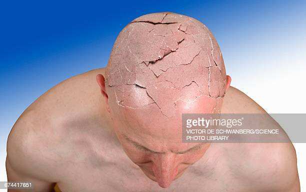 person with cracked head, illustration - destruction stock illustrations