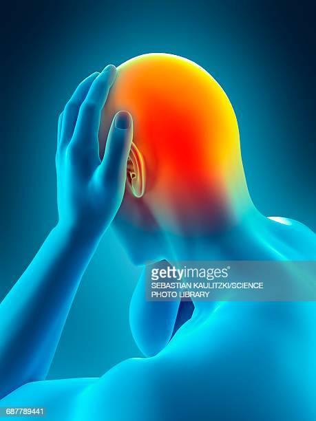 illustrazioni stock, clip art, cartoni animati e icone di tendenza di person with headache, illustration - human face