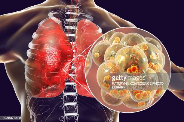 pneumococcal pneumonia, illustration - inflammation stock illustrations
