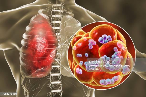pneumococcal pneumonia, illustration - streptococcus pneumoniae stock illustrations