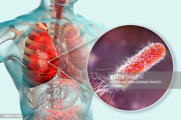 pneumonia caused by moraxella catarrhalis, illustration - rod stock illustrations, clip art, cartoons, & icons