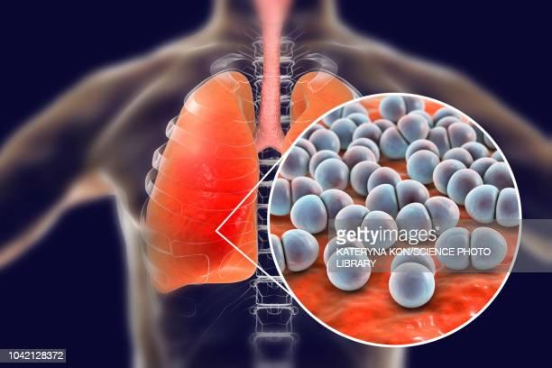 pneumonia caused by streptococcus pneumoniae bacteria, conce - streptococcus pneumoniae stock illustrations