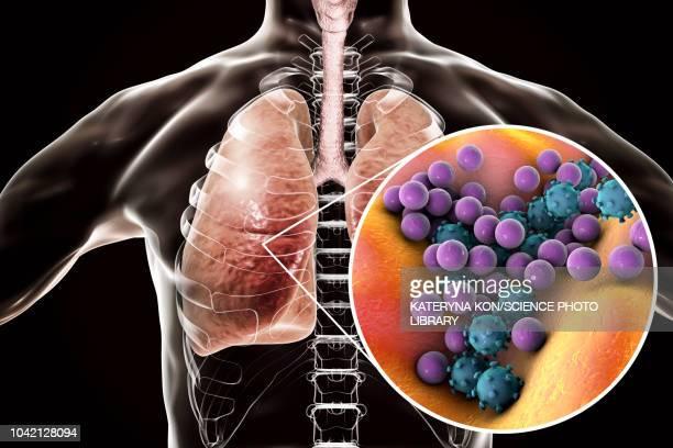 pneumonia, conceptual illustration - mrsa stock illustrations