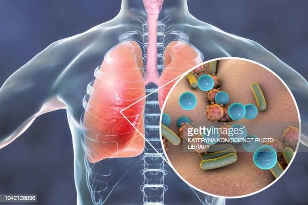 pneumonia, conceptual illustration - streptococcus pneumoniae stock illustrations