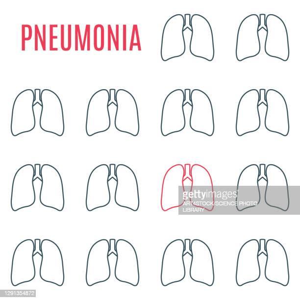 pneumonia, conceptual illustration - computer icon stock illustrations