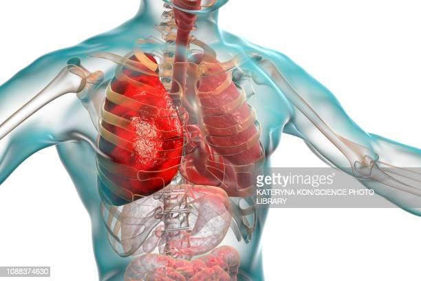 pneumonia, illustration - respiratory system stock illustrations