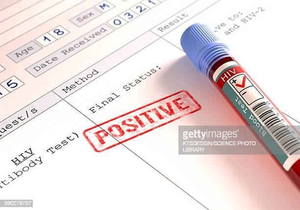 positive hiv blood test, illustration - aids stock illustrations
