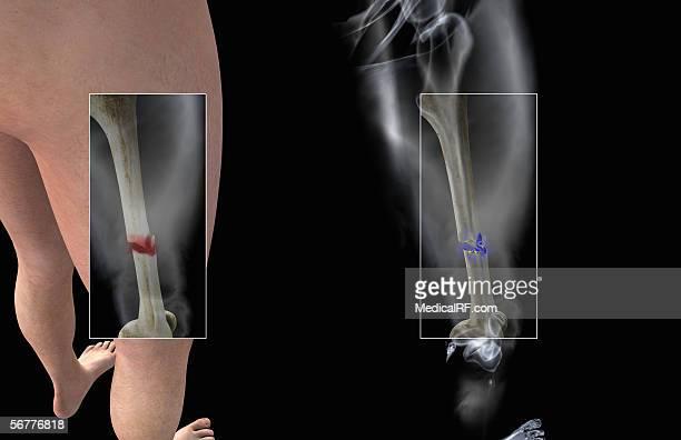ilustraciones, imágenes clip art, dibujos animados e iconos de stock de posterior view, angled to the right and above, showing a fracture of the right femur. - hueso de la pierna