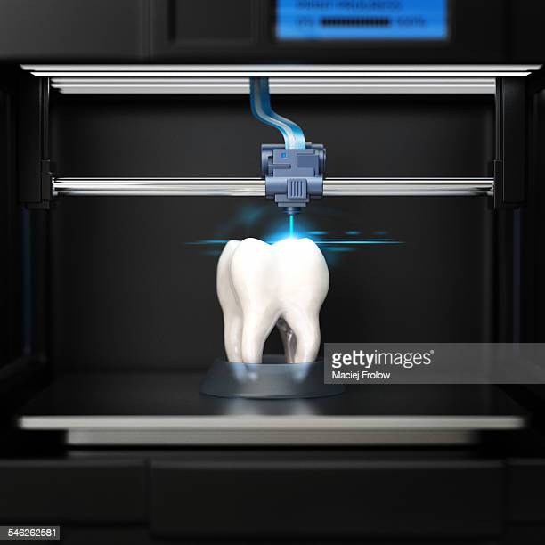 3D printer creating a tooth