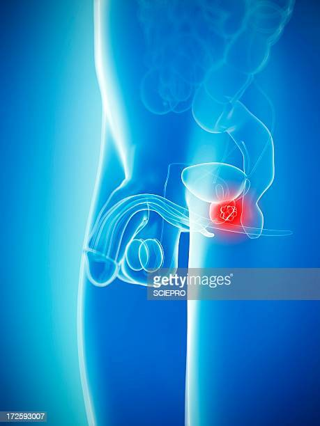 prostate cancer, artwork - tumor stock illustrations
