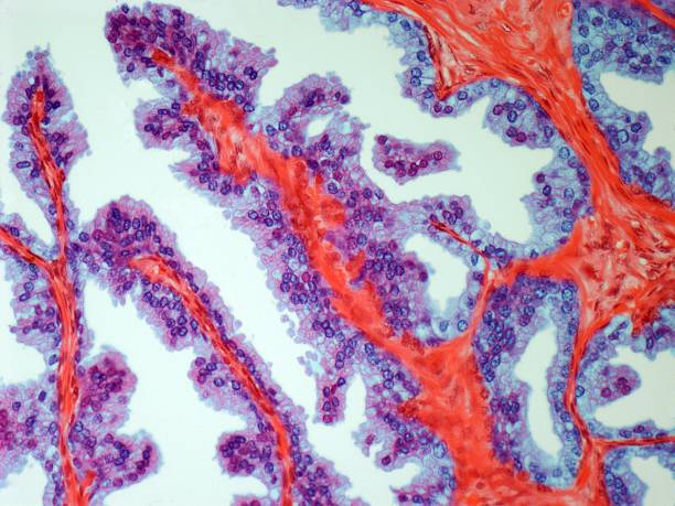 Prostate Cancer, Light Micrograph Wall Art
