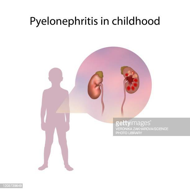 pyelonephritis in childhood, illustration - bladder stock illustrations