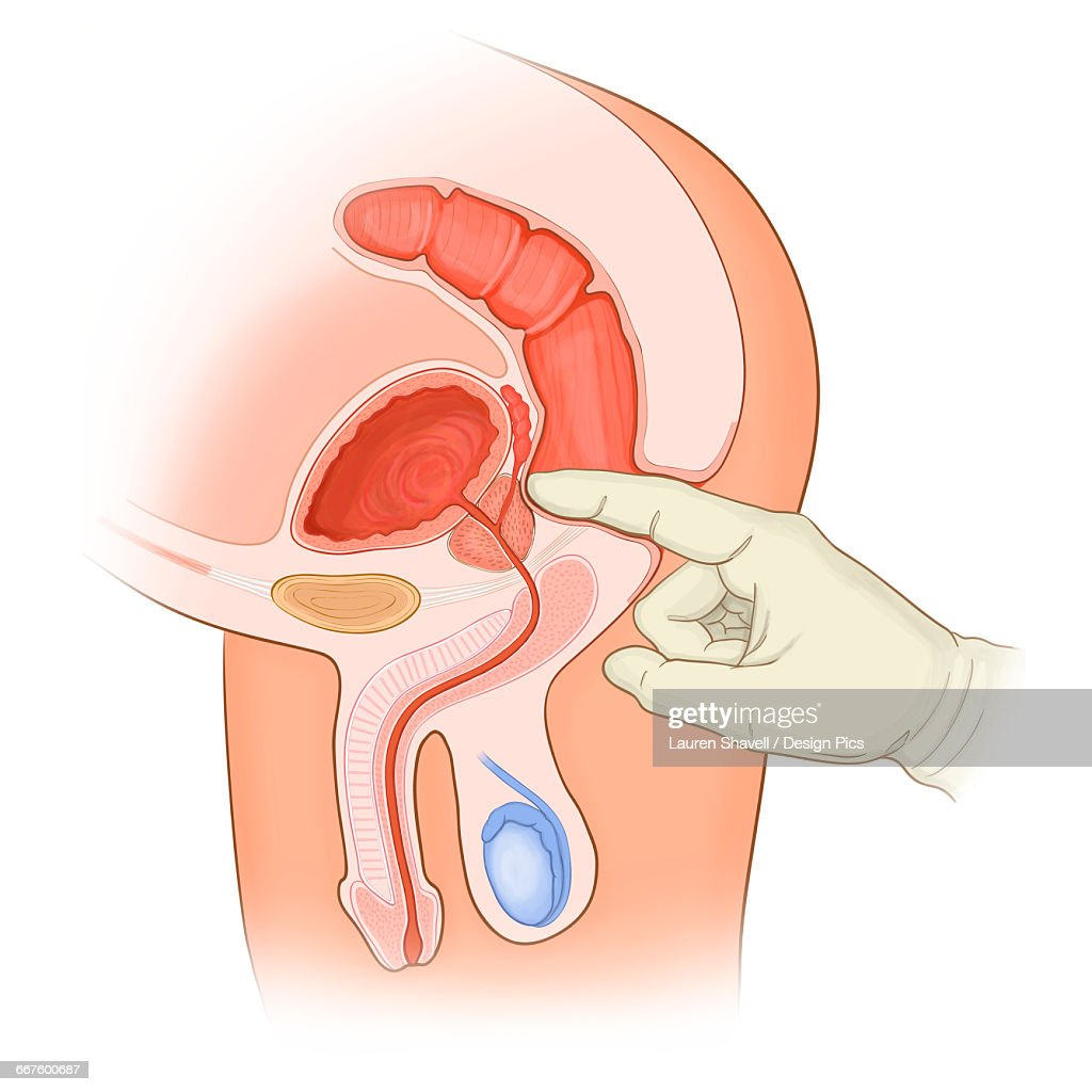 Rectal Exam Of A Normal Male In Cross Section Anatomy Stock ...