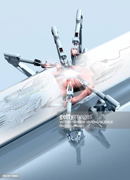 robotic arms operating on a patient - ロボット手術点のイラスト素材/クリップアート素材/マンガ素材/アイコン素材