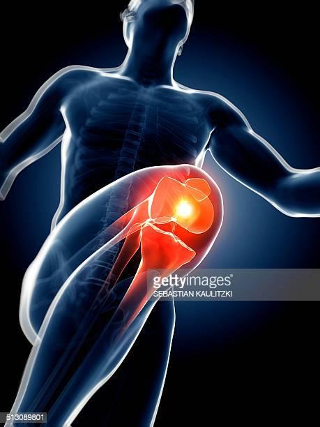 Runner's knee joint, artwork