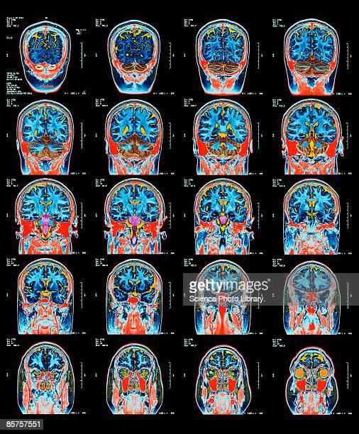 mri scan of brain - human head stock illustrations