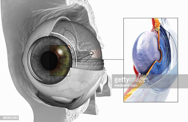 Sectioned view of the eye, highlighting the posterior and anterior chambers.
