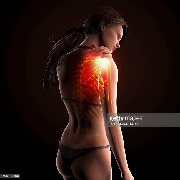 Shoulder pain, artwork
