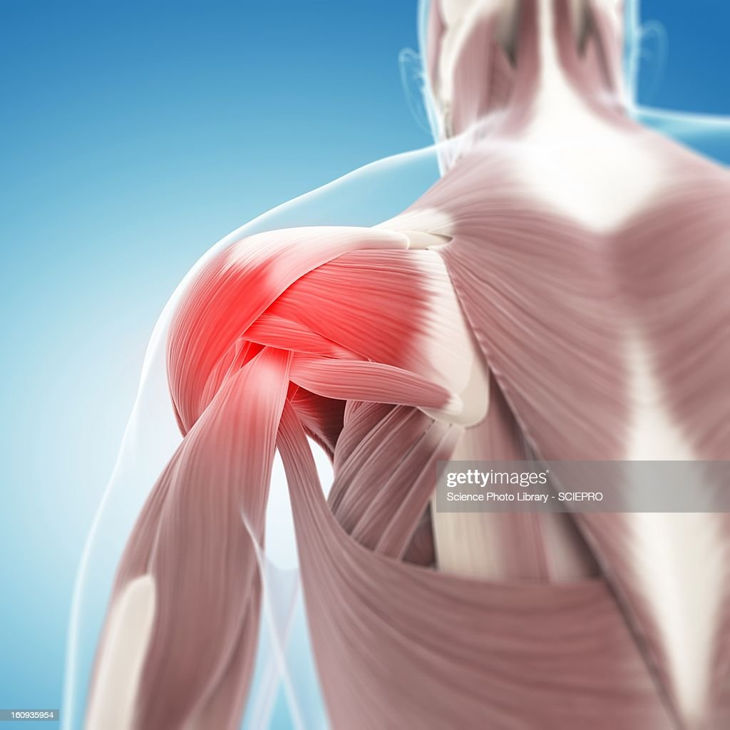 Shoulder pain, conceptual artwork : Stock Illustration