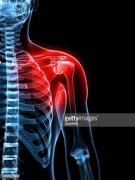 Shoulder pain, conceptual artwork