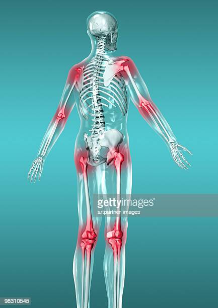 skeleton with red joints for pain / inflamation - inflammation stock illustrations