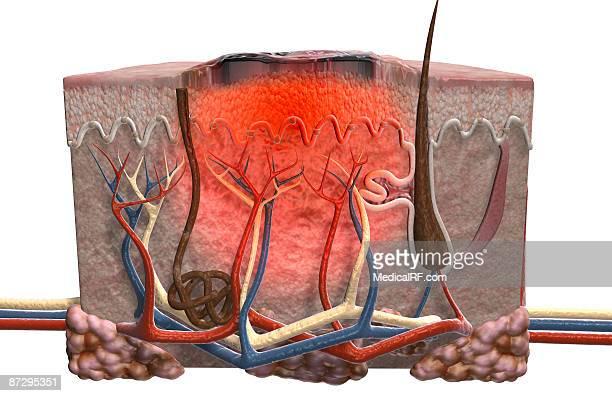 skin cancer - dermis stock illustrations