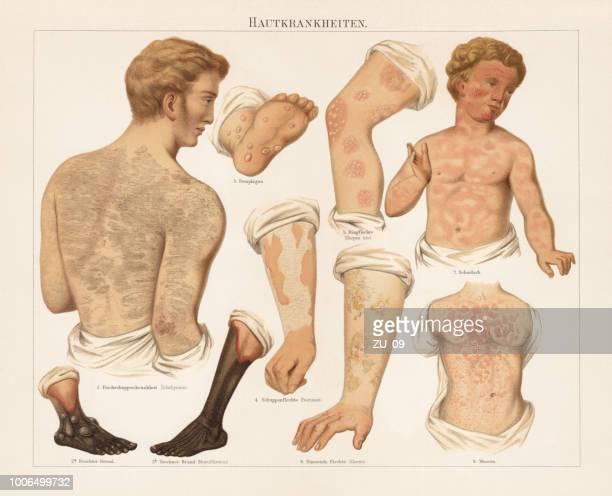 illustrazioni stock, clip art, cartoni animati e icone di tendenza di skin diseases, chromolitograph, published in 1897 - cancrena