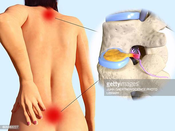 Slipped disc, illustration